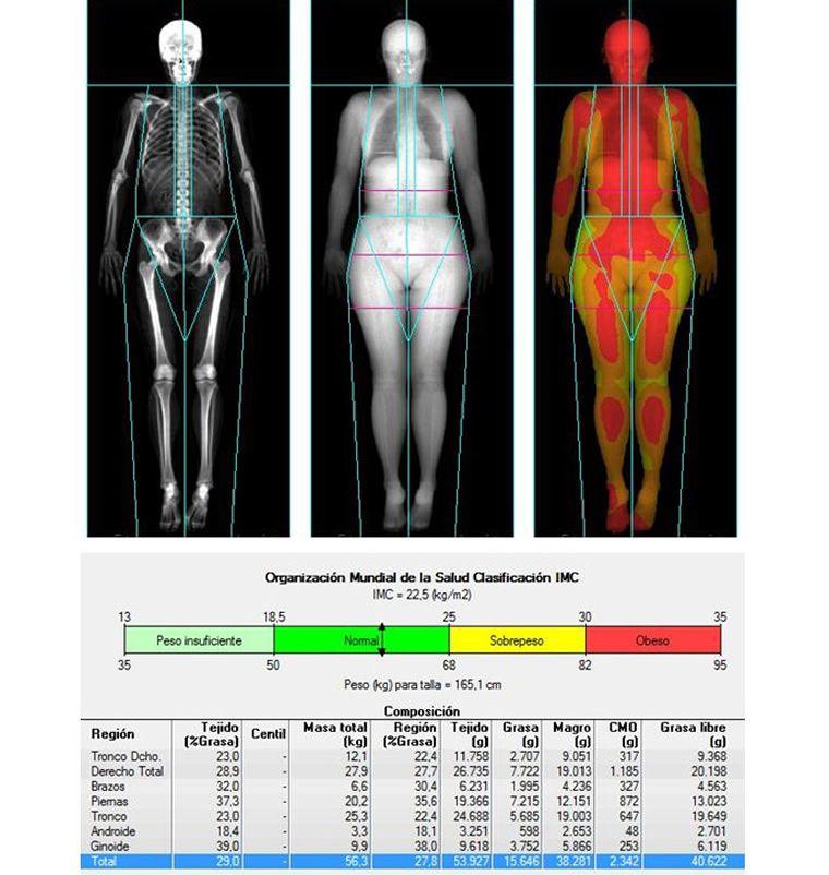 Densitometría Total Body